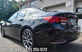 2017 Acura TLX V6 w/Advance Pkg Waterbury, Connecticut 4