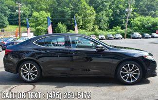 2017 Acura TLX V6 w/Advance Pkg Waterbury, Connecticut 7