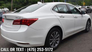 2018 Acura TLX 2.4L FWD Waterbury, Connecticut 4