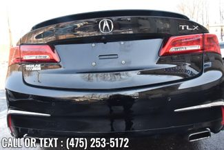 2018 Acura TLX w/Advance Pkg Waterbury, Connecticut 11