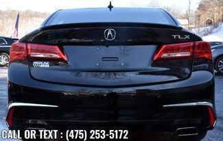 2018 Acura TLX w/Advance Pkg Waterbury, Connecticut 2