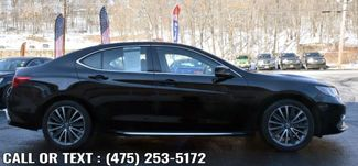 2018 Acura TLX w/Advance Pkg Waterbury, Connecticut 4