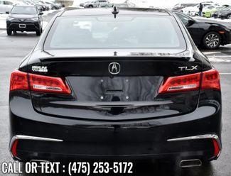 2018 Acura TLX w/Advance Pkg Waterbury, Connecticut 3