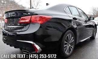 2018 Acura TLX w/Advance Pkg Waterbury, Connecticut 4